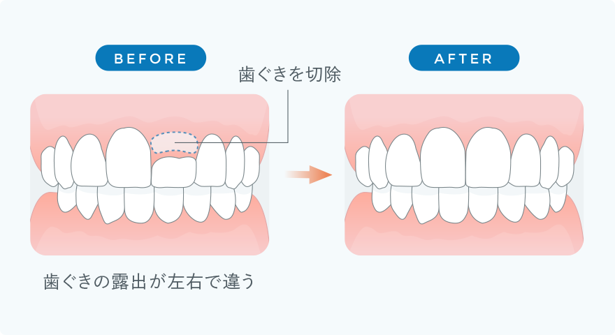 歯ぐきの整形