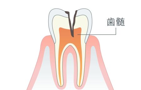 神経に進行したむし歯