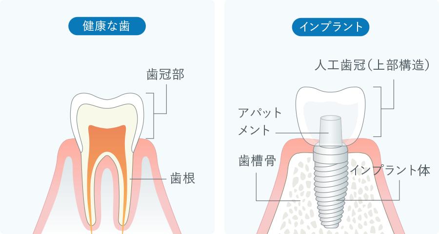 健康な歯とインプラントの比較